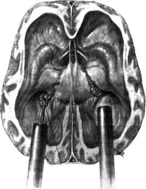 постоянные головные боли при беременности причины